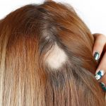 tratamento de alopecia areata em vitória espirito santo