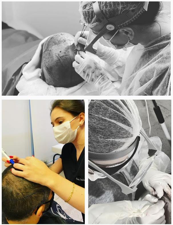 Cirurgia de transplante capilar em Vitória - ES