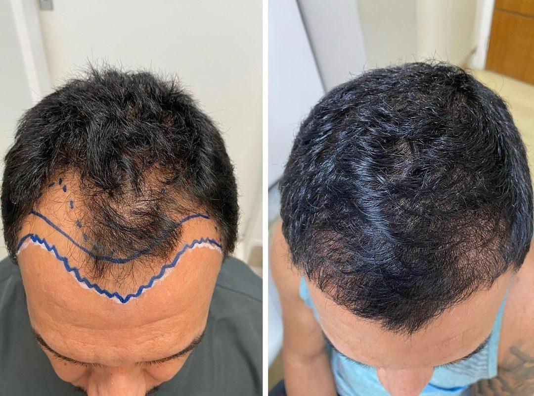 Com 4 meses pós transplante já temos este resultado!!! Ainda tem muitos fios para crescerem! Resultado final com 12 meses!!!